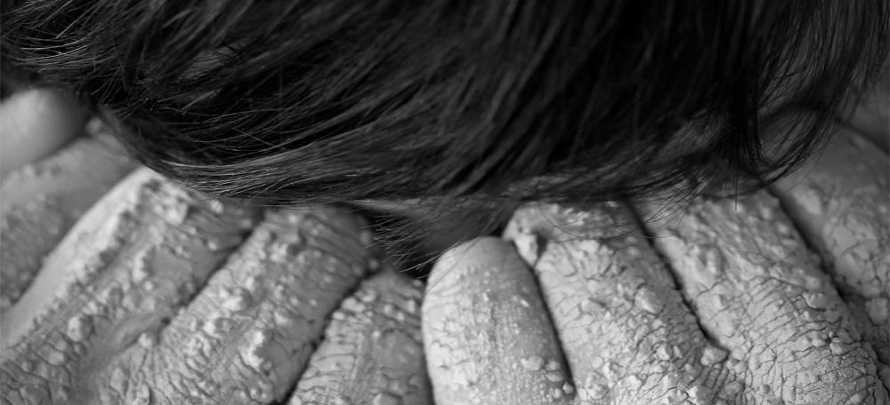 Hände Haare bröckelnder Ton